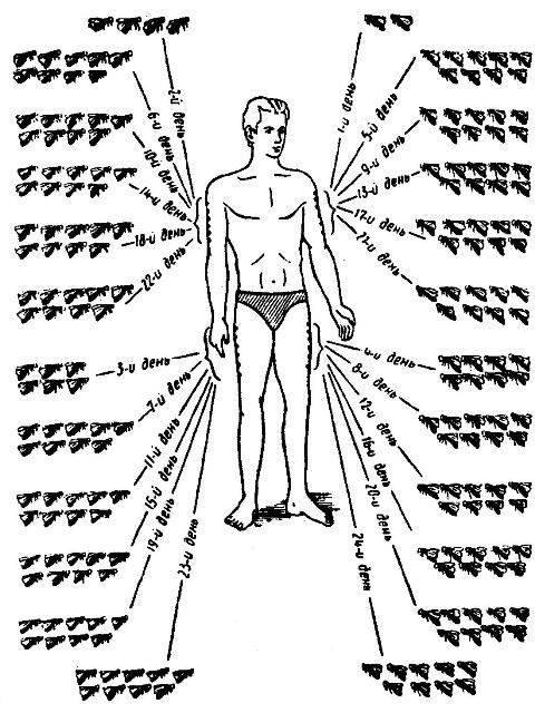 Схема пчелоужаливаний
